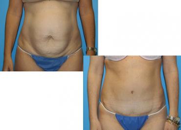 cirugia estética realizada de Abdominoplastia