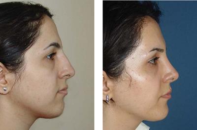 antes y despues de una operacion de nariz
